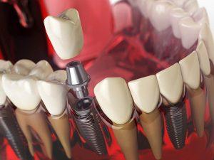 Dental Implant demonstration