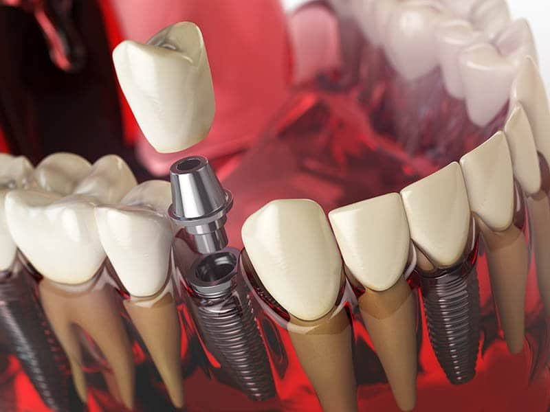 What is dental implant surgery?