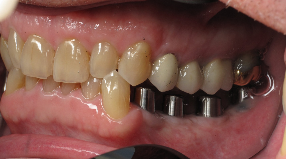 Should I Replace My Missing Tooth With An Implant?