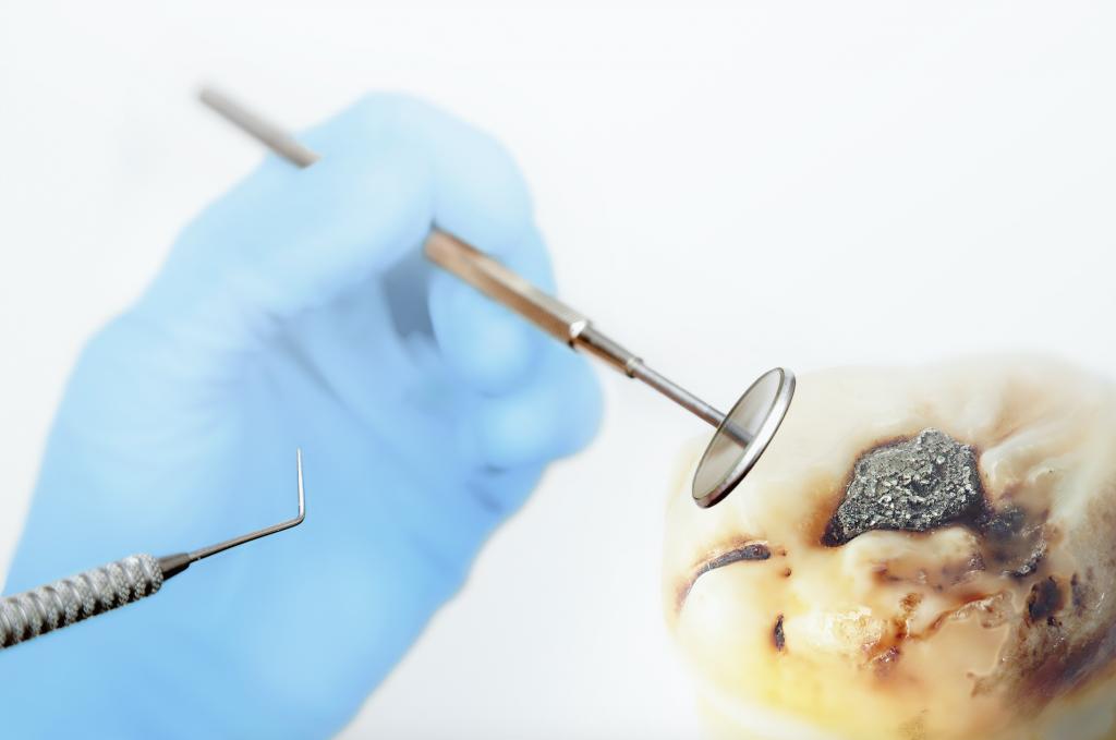 Dental Amalgam Tooth Fillinh in Family Dentistry Victorville
