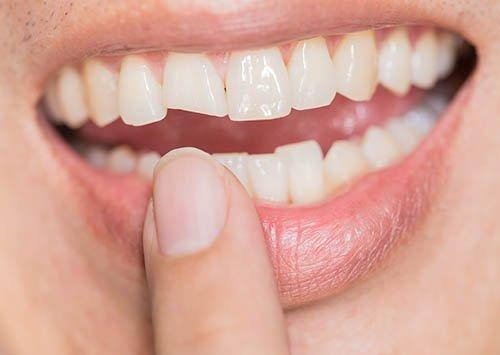 Emergency dentist toothache