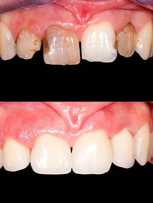 Treatment for Dental Veneers in Victorville CA