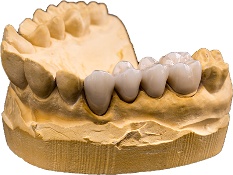 Dental Bridge Cast