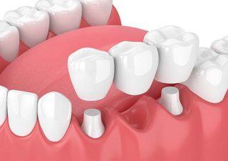 dentist in victorville placing Dental Bridge