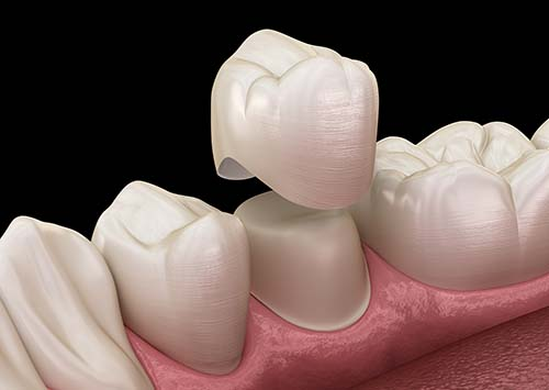 Dental Crowns Liberty Village Dental Care