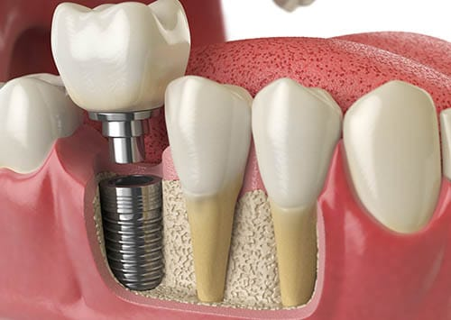 Dental Services Victorville, Implants