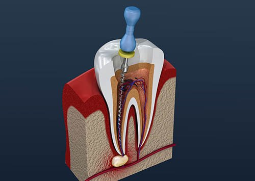Root Canal Treatment Victorville, The root origins