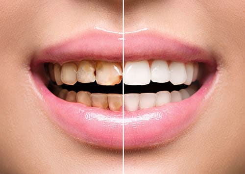 Smile Makeover by Victorville dentist in California