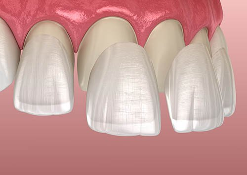 3 Pros & Cons About Dental Veneers