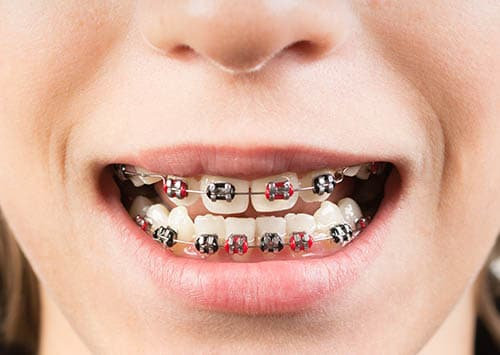 Dental Orthodontics Victorville, Metal Braces