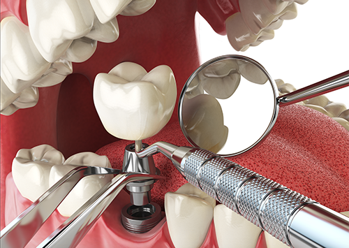 Oral Surgery Victorville, Dental Implants