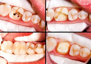 Before and After Root Canal Treatment