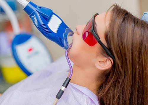 Routine Dental Procedures, Teeth Whitening