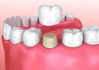 tooth crown placement by victorville dentist
