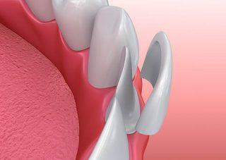 Dental Veneer dentist in Victorville CA