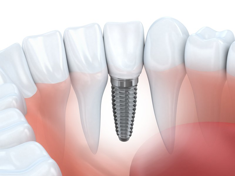 Benefits and Risks of Dental Implants