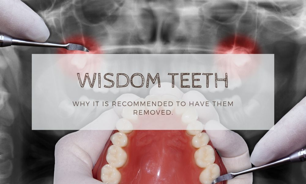 Wisdom Teeth Removal Recommendation